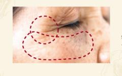 老化の約80%が 紫外線 しみ、しわ、たるみの原因となる紫外線